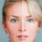 ¿Cómo afecta el coronavirus a la piel? ¿Salen manchas?